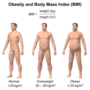 Obesity-&-BMI